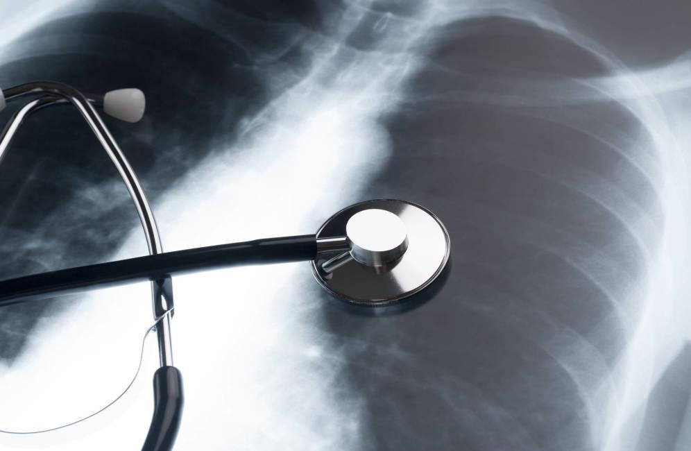 Foto: Radiografía pulmonar. (iStock)