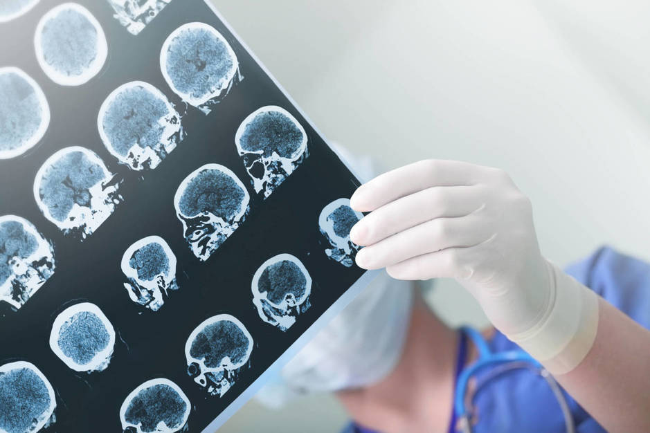 Aunque no tenga cura, se han mejorado las técnicas de diagnóstico de la enfermedad. (iStock)