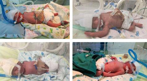 Cuatrillizos que nacieron en La Paz