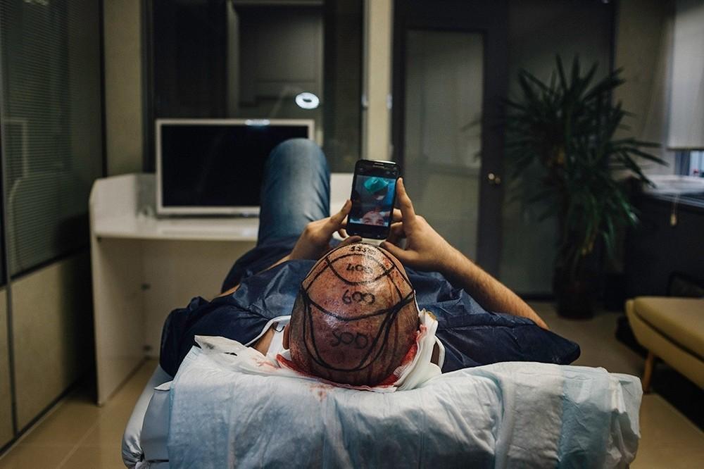 telefono transplante pelo