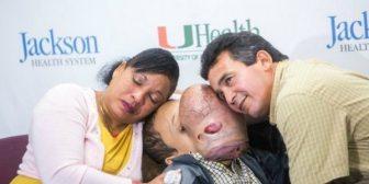 Murió Emanuel, el niño cubano al que le extirparon un tumor facial de 4,5 kilos en Miami