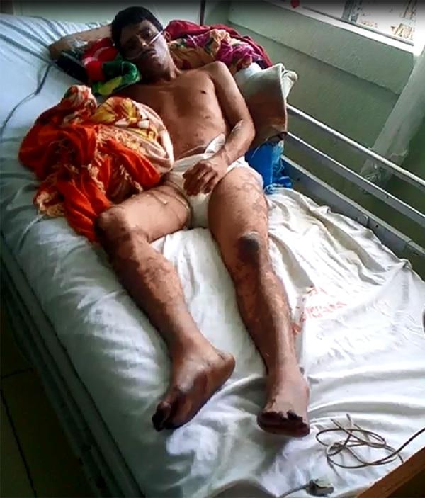 La Policía lo golpeó brutalmente, le amputaron los pies en la cárcel y era inocente