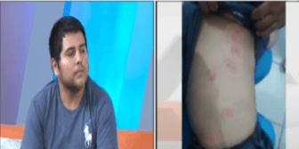 Padre denuncia que su hijo sufrió agresión física en una guardería municipal