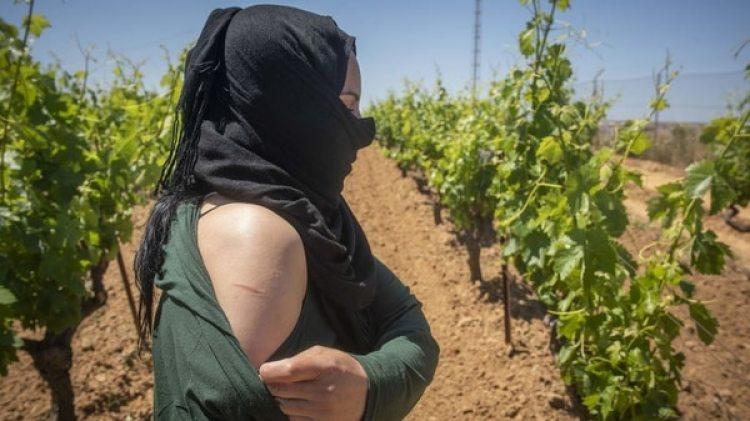 Una de las presuntas víctimas posa enseñando heridas sufridas por capataces en campos de fresas (Foto cedida por Marcos Moreno)