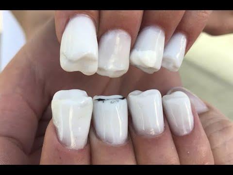Instagram: esta manicure están siendo viral. ¡Tiene forma de dientes!