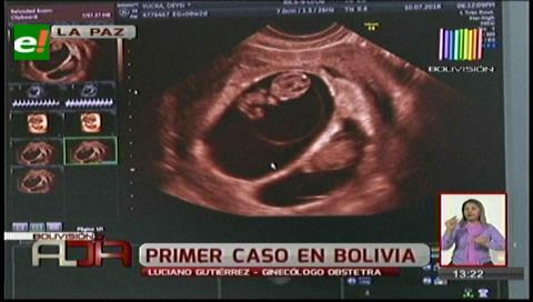 Una mujer de 53 años da a luz a mellizos en la ciudad de La Paz