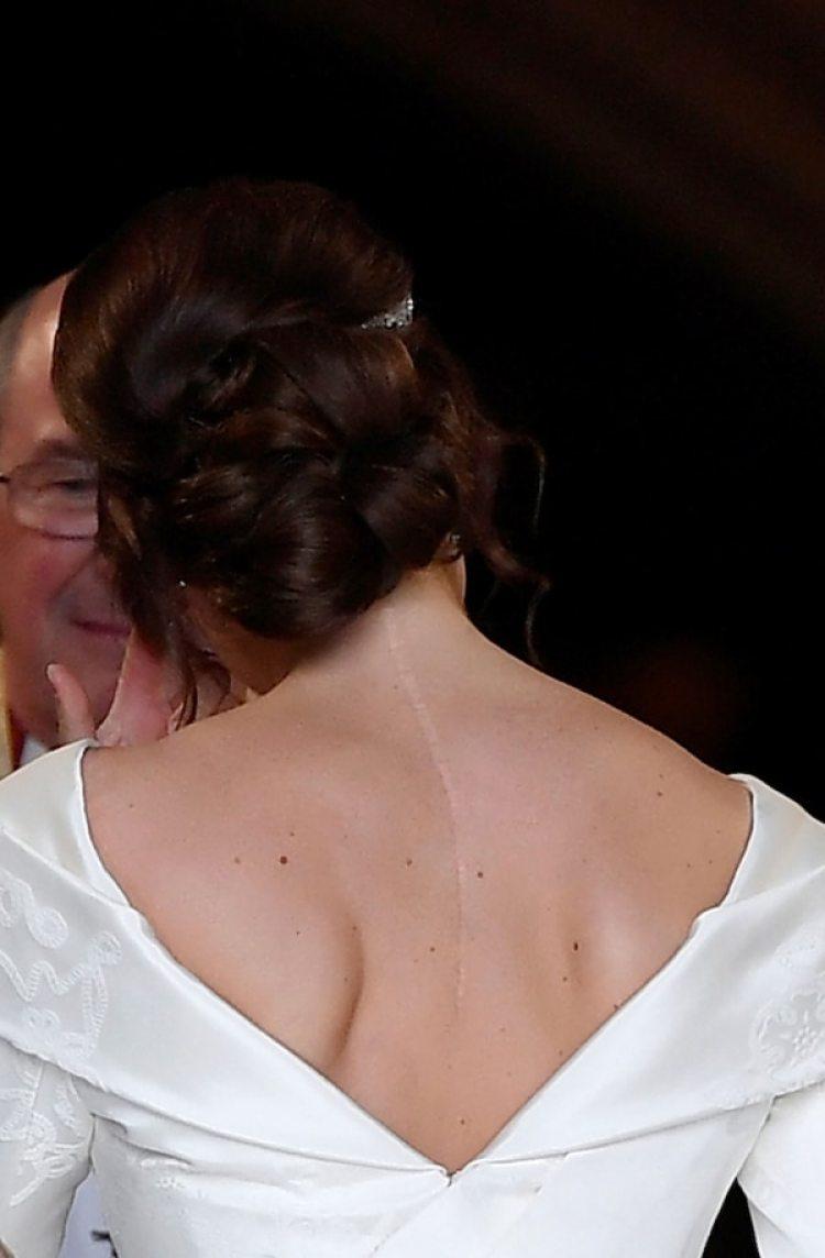 La impactante cicatriz de la princesa Eugenie que dejo ver el día de su boda