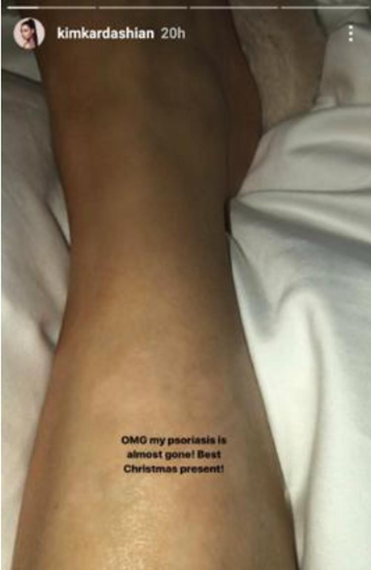 En sus redes sociales en ocasiones comparte los avances de la enfermedad en sus piernas (Foto: Instagram kimkardashian)