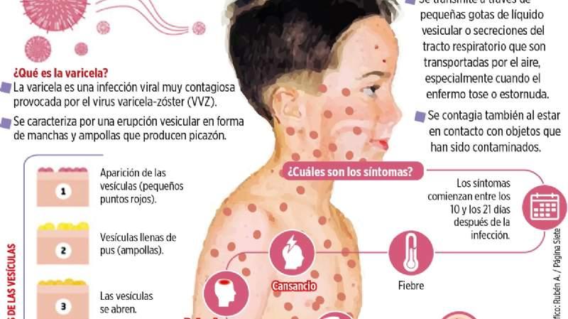 Sintomas varicela