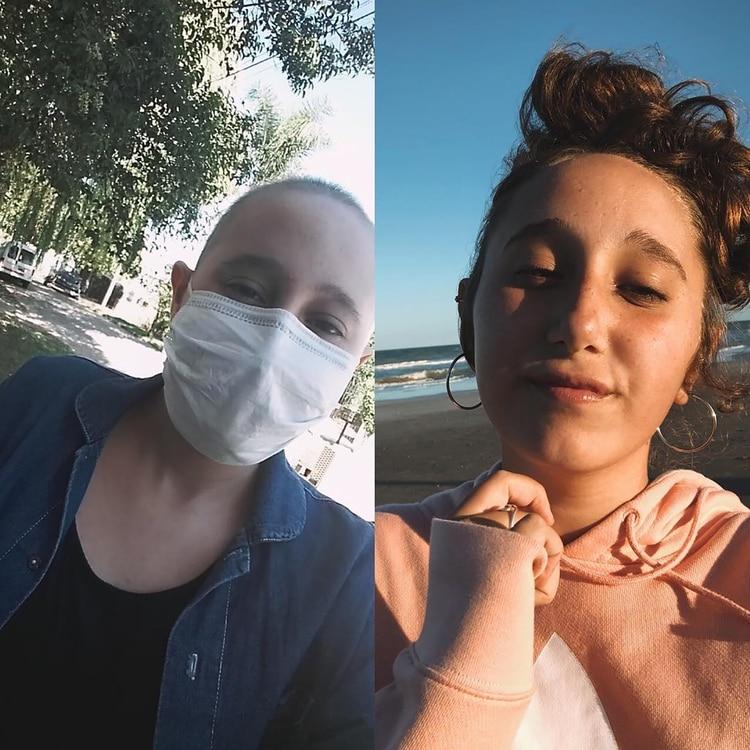 A la izquierda, cuando estaba en pleno tratamiento, y a la derecha, hoy, ya recuperada de la enfermedad.