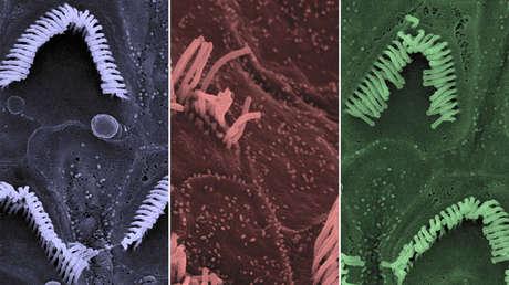 Los receptores sensoriales auditivos de un ratón sano (izquierda), uno con la mutación de Beethoven (centro) y uno recuperado después del tratamiento (derecha).