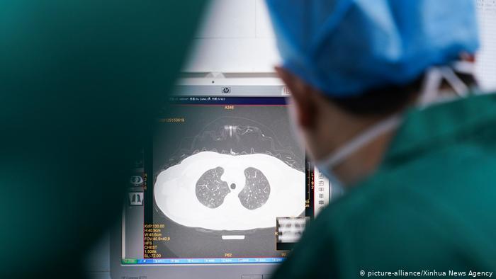 China Zhangzhou | Coronavirus | CT-Bild von Lunge (picture-alliance/Xinhua News Agency)