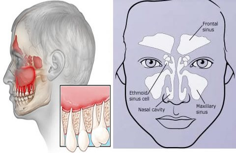 Tooth Pain And The Sinusitis is there any connection ...