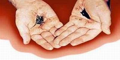 Le sang des stigmatisés