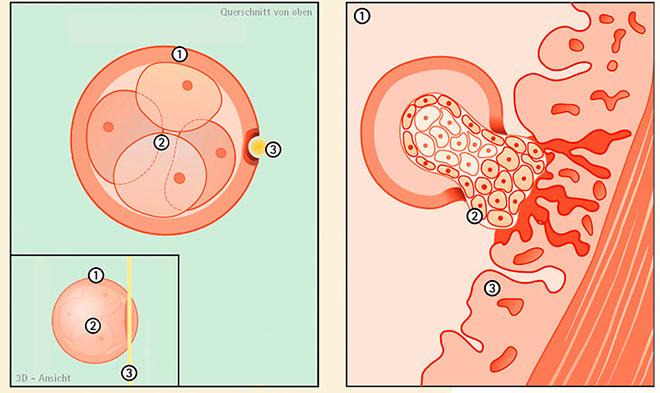 transferul embrionilor și pierderea în greutate