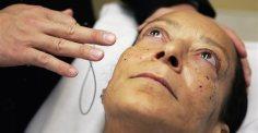 Σύστημα τεχνητής νοημοσύνης διέγνωσε επιθετικό καρκίνο του δέρματος