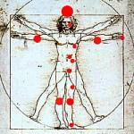Män får bättre behandling mot psoriasis än kvinnor
