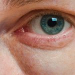 Påsar under ögonen