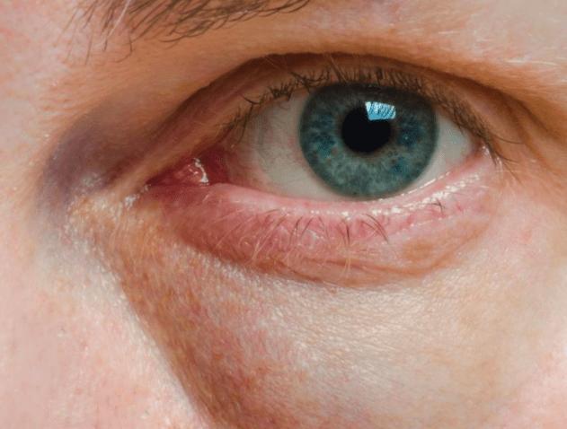 vita prickar under ögat