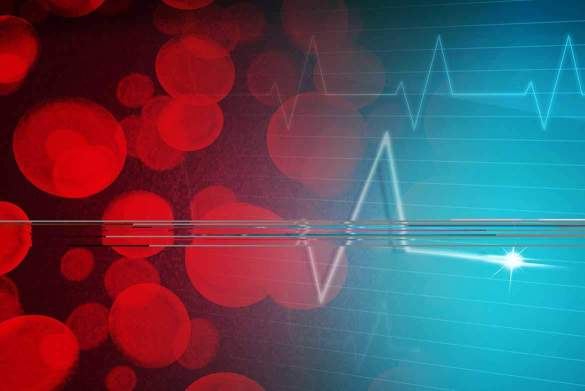 fizik-tedavi-ve-rehabilitasyon-eksen-saglik-Multiple Skleroz Hasta Bakımı