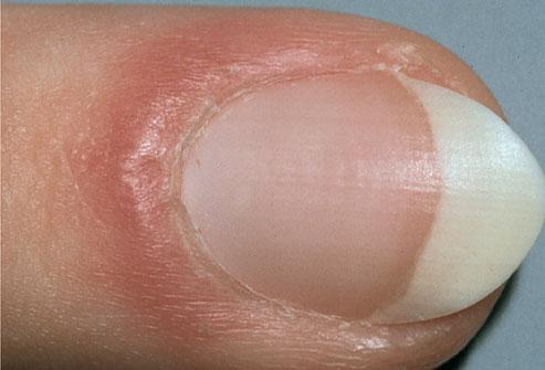Aspectul unghiilor-Pliul unghial inflamat