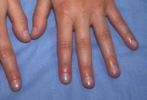 Aspectul unghiilor-Unghii albăstrui
