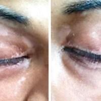 Repigmentarea parțială a zonelor cu vitiligo fiind pe o dietă fără gluten