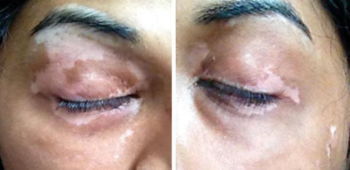 Repigmentarea parțială a zonelor cu vitiligo pe o dietă fără gluten