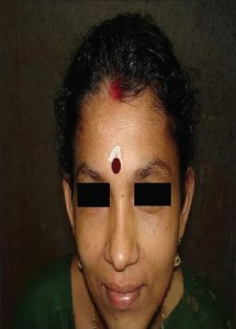 hipotiroidism