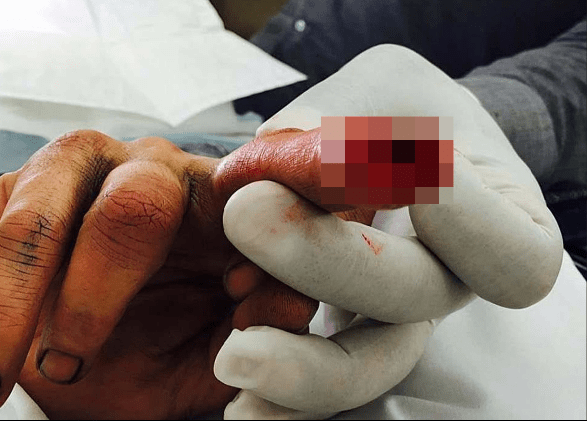 """'BLOOD EVERYWHERE' Johnny Depp's estate manager 'found """"piece of flesh"""" from actor's severed finger after bust-up with Amber Heard' 6"""