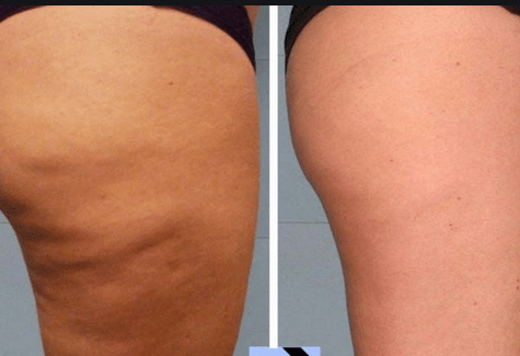 Celulita poate fi vindecată prin Echilibrare Nutrițională 5