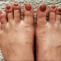 Simptomul numit Degetul COVID. Apare la tineri și poate dura câteva luni