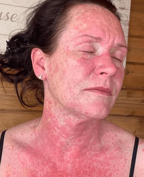 Vaccinul AstraZeneca: erupție pe corpul mamei unui copil autist 4