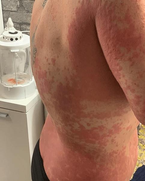 Vaccinul AstraZeneca: erupție pe corpul mamei unui copil autist 6