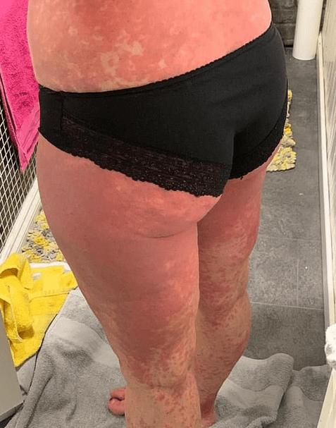 erupție după vaccinul astrazeneca