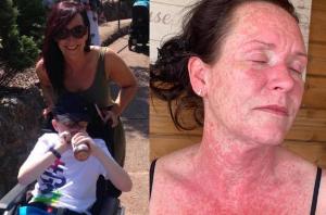 Vaccinul AstraZeneca: erupție pe corpul mamei unui copil autist