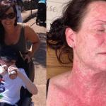 erupție pe corp după vaccinul astrazeneca