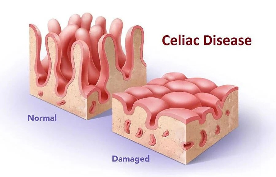 Image result for Celiac Disease