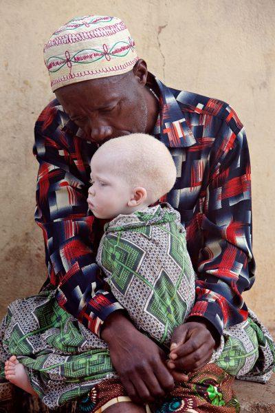 Un padre visita a su hijo refugiado en uno de los centros para albinos al norte de Tanzania. Foto: Liron Shimoni.