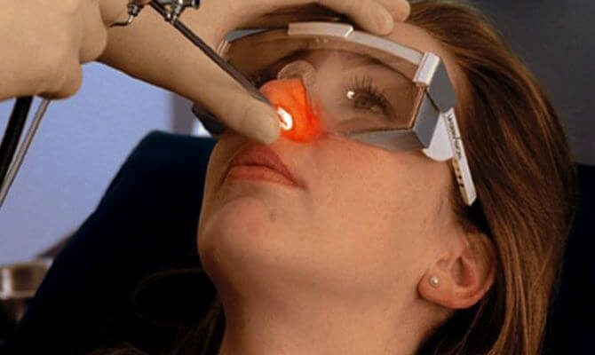 Спайки в носу после операции как лечить. Спайки после операции