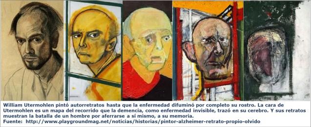 William Utermohlen pintó autorretratos hasta que la enfermedad difuminó por completo su rostro. La cara de Utermohlen es un mapa del recorrido que la demencia, como enfermedad invisible, trazó en su cerebro. Y sus retratos muestran la batalla de un hombre por aferrarse a sí mismo, a su memoria