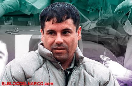 Las posibles cirugías estéticas que El Chapo se hizo para lucir más atractivo