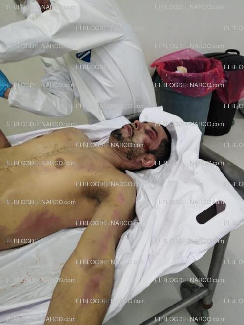 Fotografías de El Chino Ántrax en la plancha en la morgue, continúan los peritajes para identificarlo (1)