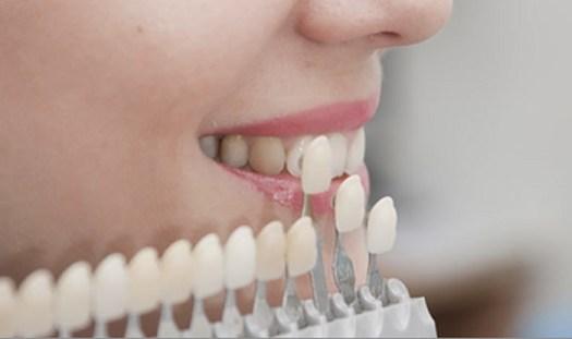 10-dicas-facetas-e-lâminas-lentes-de-contato-dental
