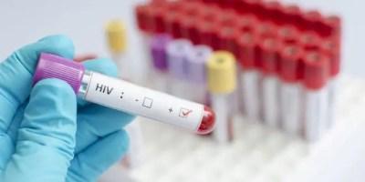 Un estudio de científicos españoles apuntó a los trasplantes de células madre como una posible vía para eliminar el VIH del organismo.