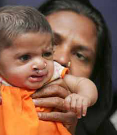 Children in the Punjab are increasingly born with birth defects. The phenomenon may well be due to depleted uranium carried over by wind currents from Afghanistan. (Photo: Money Sharma / EPA)