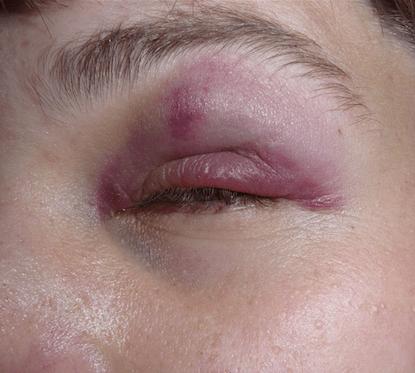 Black Eye