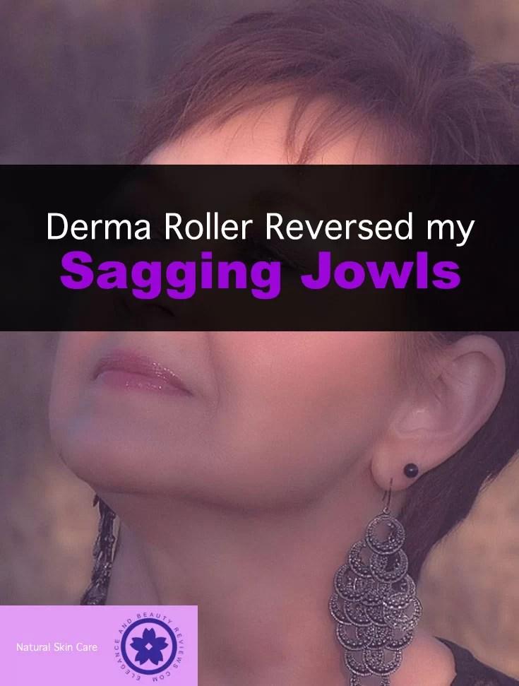 Derma Roller Reversed my Sagging Jowls