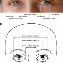 Parts Of The Eyelid Diagram Car Headlight Wiring Elements Morphology Human Malformation Terminology Anatomy Periorbital Region