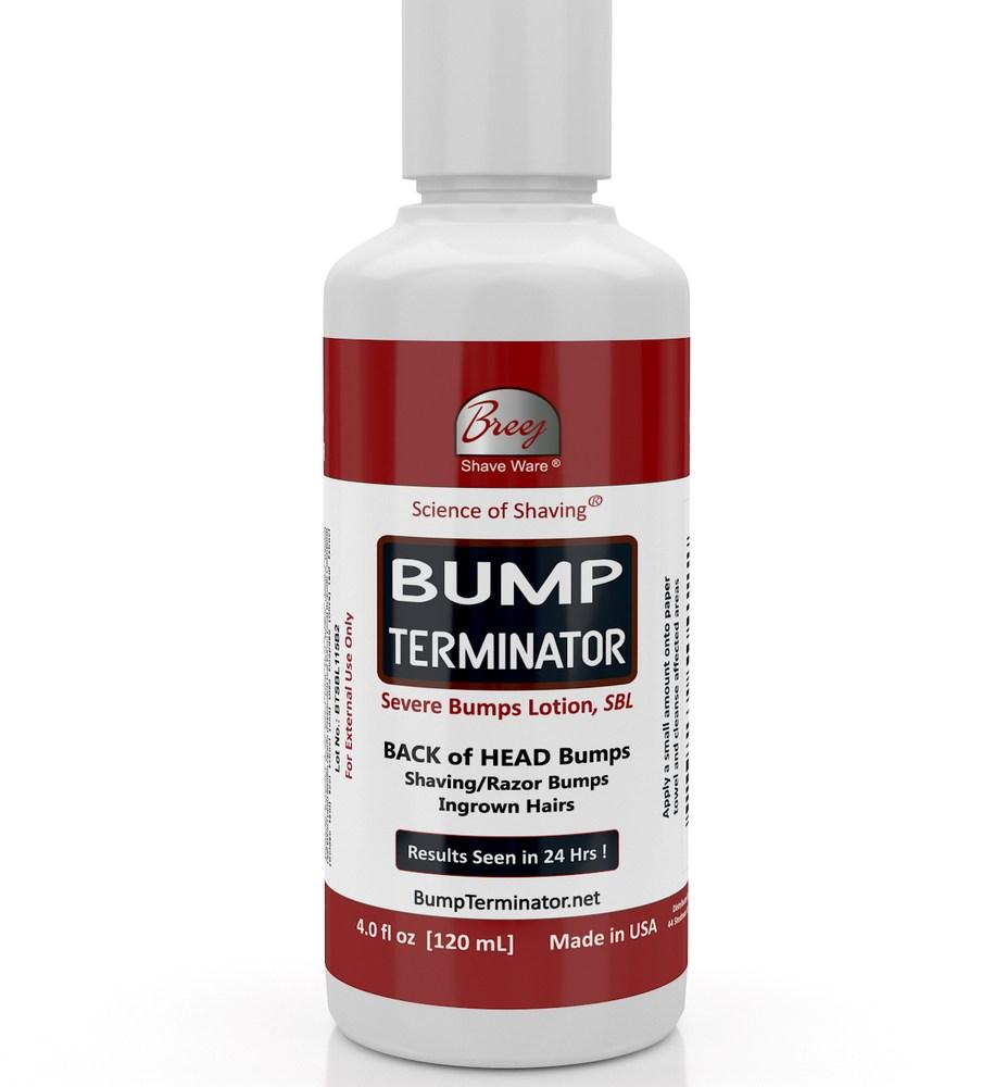 bump_terminator_severe_bumps_lotion